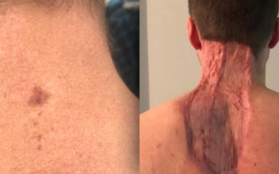 Man urges others to be vigilant after neck spot turns out to be skin cancer