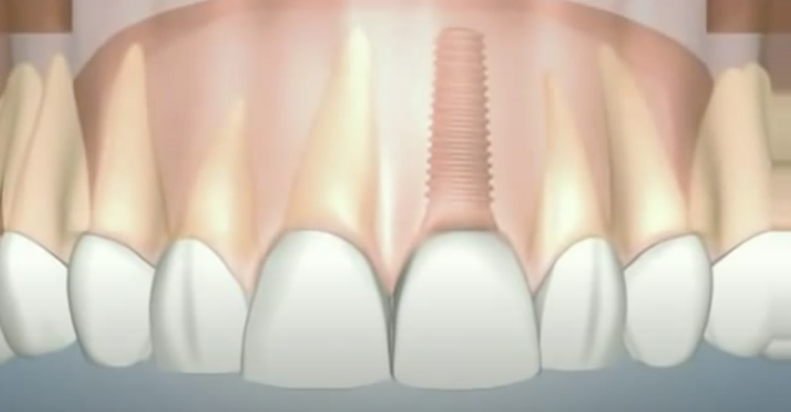 Oral Surgery & Implants