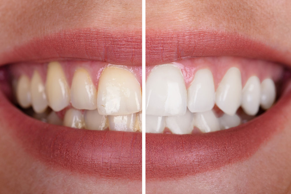 Cosmetic & Restorative Dentistry
