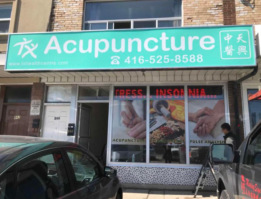 browns line etobicoke acupuncture clinic