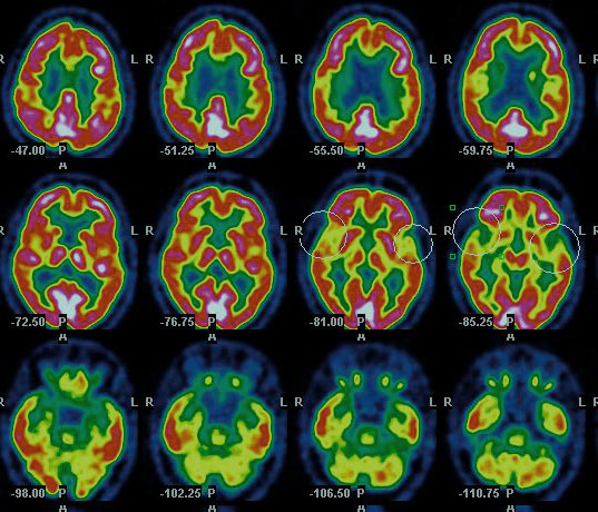 Scan of a alzheimer patient.