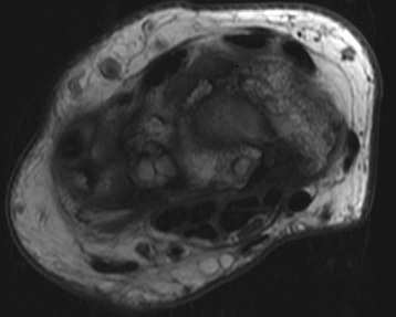 necrosis del triquetrum