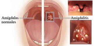 Remedios para eliminar el dolor de garganta en 4 horas