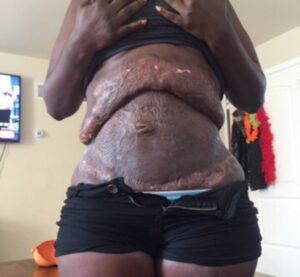 4 Days After Her Tummy Tuck, She Feels Like Her Skin Is Ripping Apart. When She Goes To The Hospital, She Discovers The Truth 5