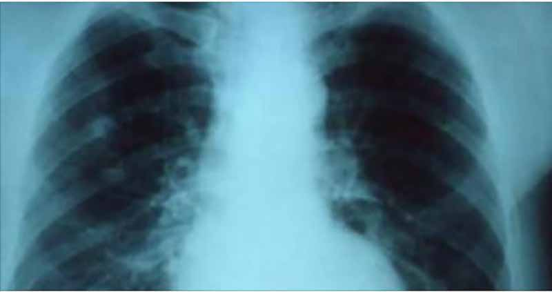 Add 3 Drops of Oregano Oil to Water and SEE What Happens to Your Lungs 1