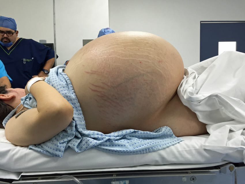 She Looked Like She Was Pregnant With 10 Babies. Then Doctors Showed Her An X-Ray 17
