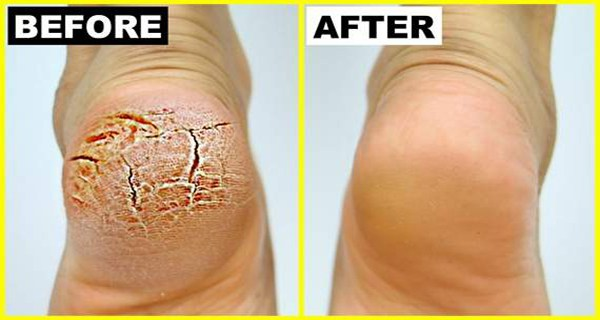 Grandma Told Me This Trick. It Healed My Cracked Heels in Just a Few Days 1