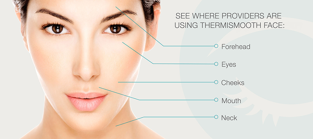 ThermiSmooth Face Treatment Areas