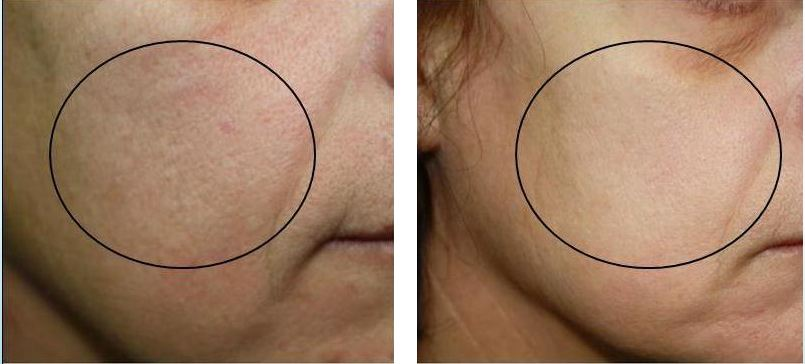 Superfacial Geneo+ Before and After