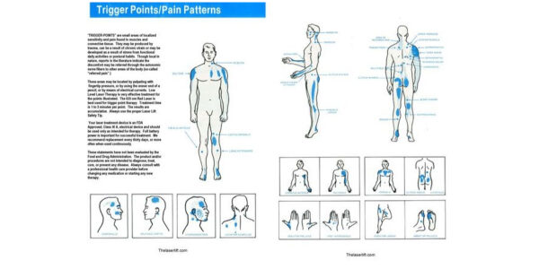 Trigger Point Chart