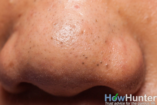 12 tips to get rid of blackheads on nose fast