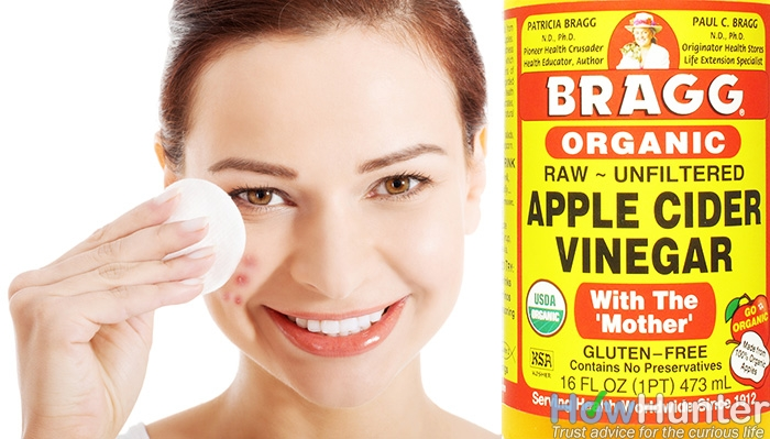 how to use apple cider vinegar for acne