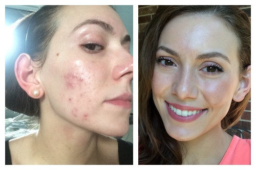 get rid of hormonal acne