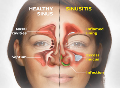 sinus headache