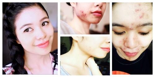 stop hormonal acne