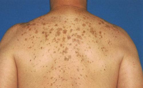 dark spots on back