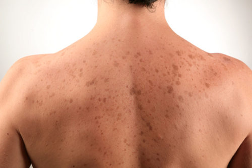 dark spots on skin pics