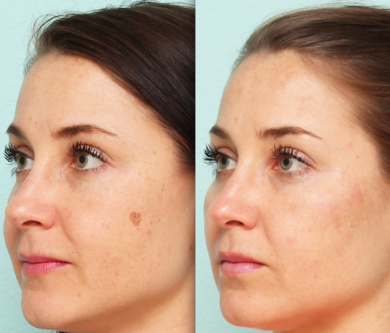 dark spots your skin