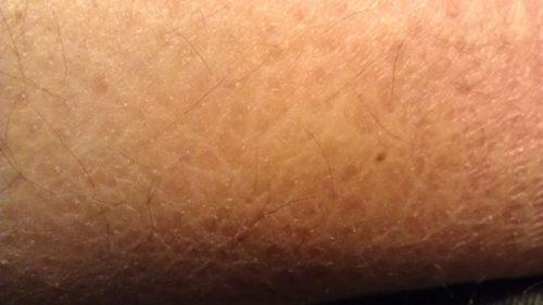 dry skin on leg