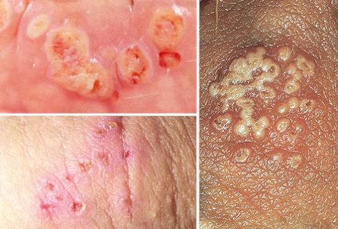genital herpes pictures