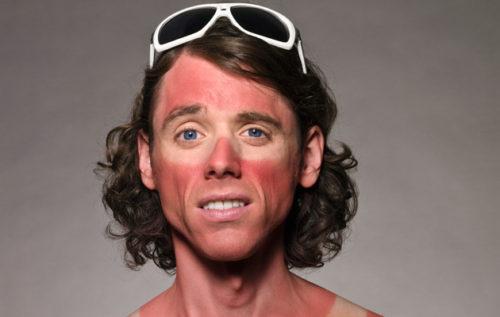 sunburn on yur face