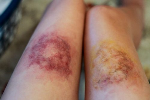 bruises on legs pictures