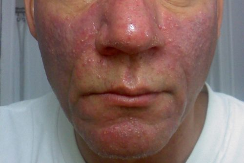 get rid of hives on face
