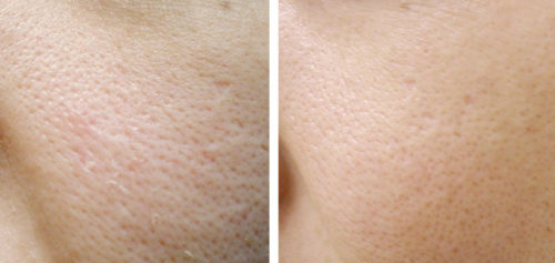 large pores before after