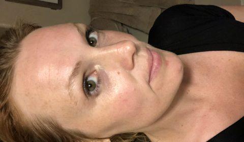 DIY Vampire Facial before after