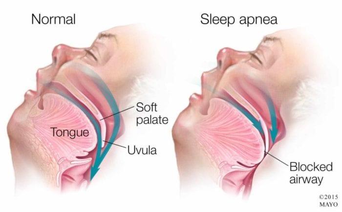 TREATMENT FOR SLEEP APNEA IN OXNARD,CA