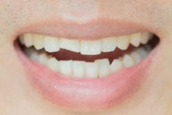 Dental Bonding For Chipped Teeth Oxnard CA