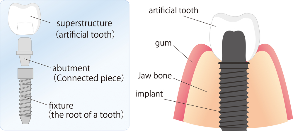 Illustration of all the pieces of dental implants and how they attach in the jaw.