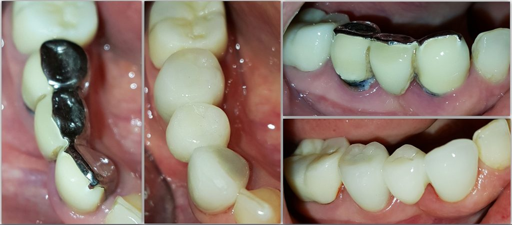 layered zirconia 27_28bridge_Rammal