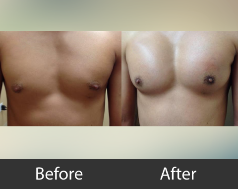 Male Chest Implants