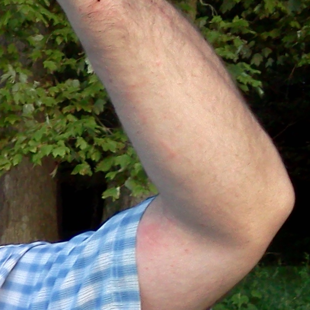 Poison ivy on arm.
