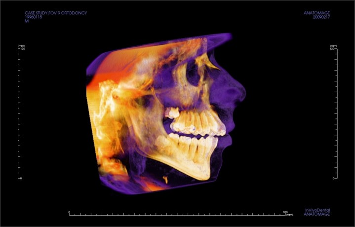 Mobile Cone Beam CT Scans