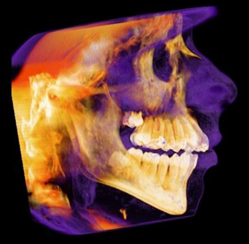 Mobile Dental CT Scans