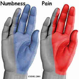 Carpal Tunnel Syndrome2