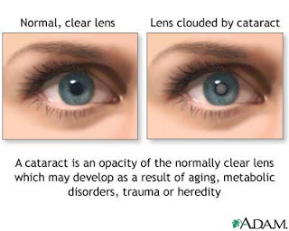 Cataract signs and symptoms