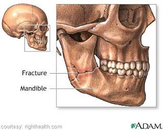 Mandibular Disbandment Reduction