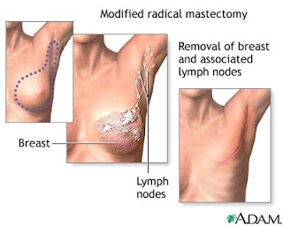Modified Radical Mastectomy