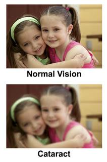 cataractvision