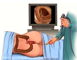 colonoscopy (1)