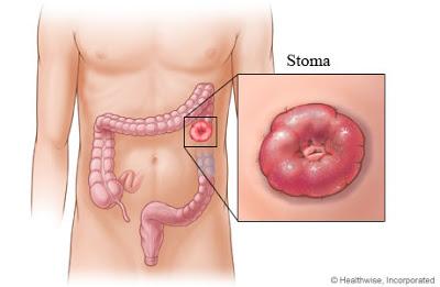 colostomy