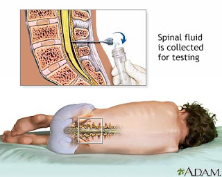 A lumbar puncture, or spinal tap, is a procedure to collect cerebrospinal fluid to check for the presence of disease or injury. A spinal needle is inserted, usually between the 3rd and 4th lumbar vertebrae in the lower spine. Once the needle is properly positioned in the subarachnoid space (the space between the spinal cord and its covering, the meninges), pressures can be measured and fluid can be collected for testing.