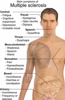 symptoms-of-multiple-sclerosis