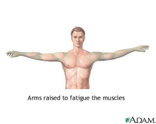 Holding your arms above your shoulders until they drop is one exercise that may be performed during the Tensilon test. In this test, the drug Tensilon is administered, and the response in the muscles are evaluated to help diagnose myasthenia gravis or to help differentiate between myasthenia gravis and other conditions.