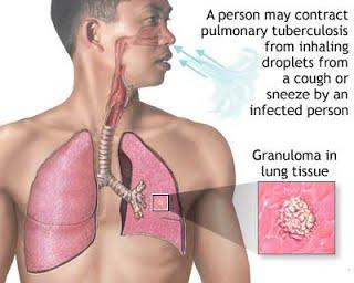 tuberculosis_bacteria