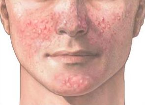 image by: http://dyersburgskinandallergyclinic.com/