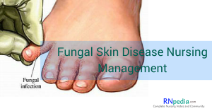 Fungal Infection Nursing Management